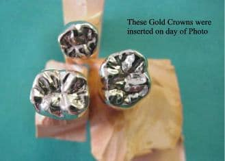 Gold Crowns -