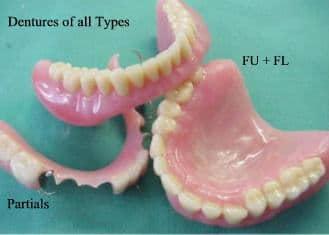 dentures partials and FU+FL