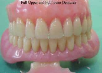 full upper and lower dentures