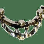 implant-fullarch