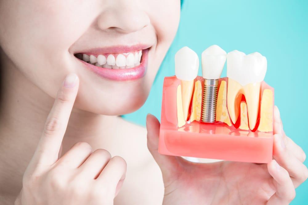 Implants -