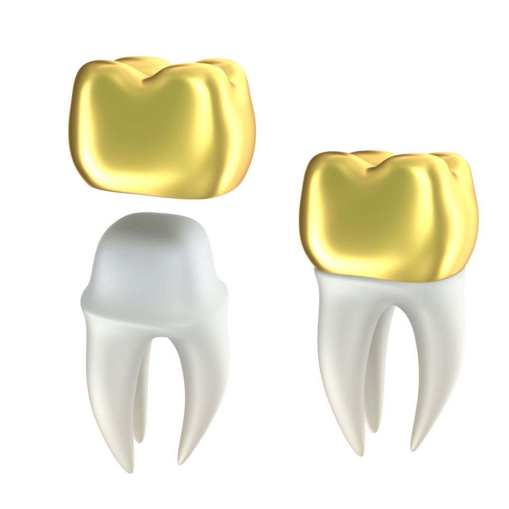 Gold Crowns »